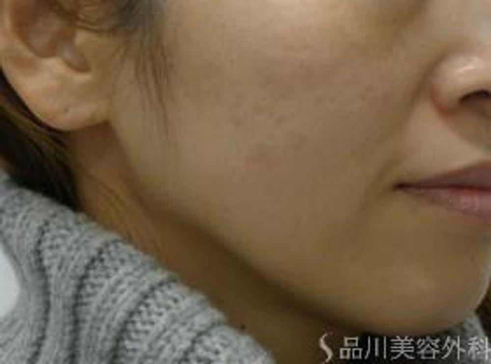 品川美容外科のYAGレーザー,美容皮膚,美白・美肌,しみの画像
