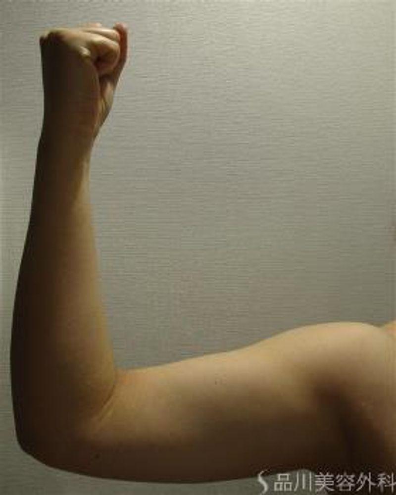 品川美容外科の冷凍脂肪溶解の画像