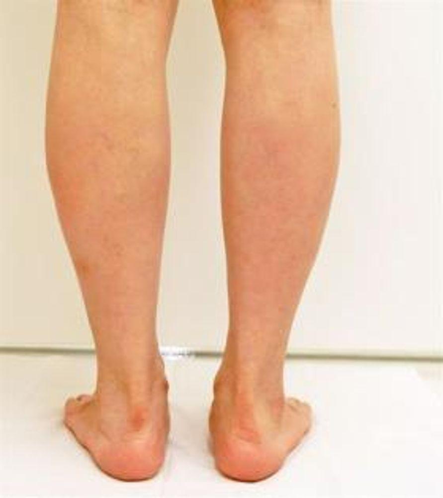 品川美容外科の脂肪溶解注射,痩身の画像