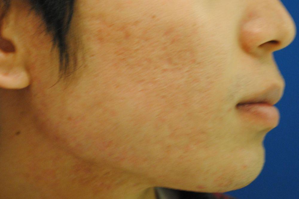 東京イセアクリニックのニキビ,イオン導入,フォトフェイシャル,LED治療,フォトRF,ケミカルピーリング,美容皮膚,美白・美肌,フラクショナルCO2レーザー,ダーマローラ,高濃度ビタミンC注射の画像