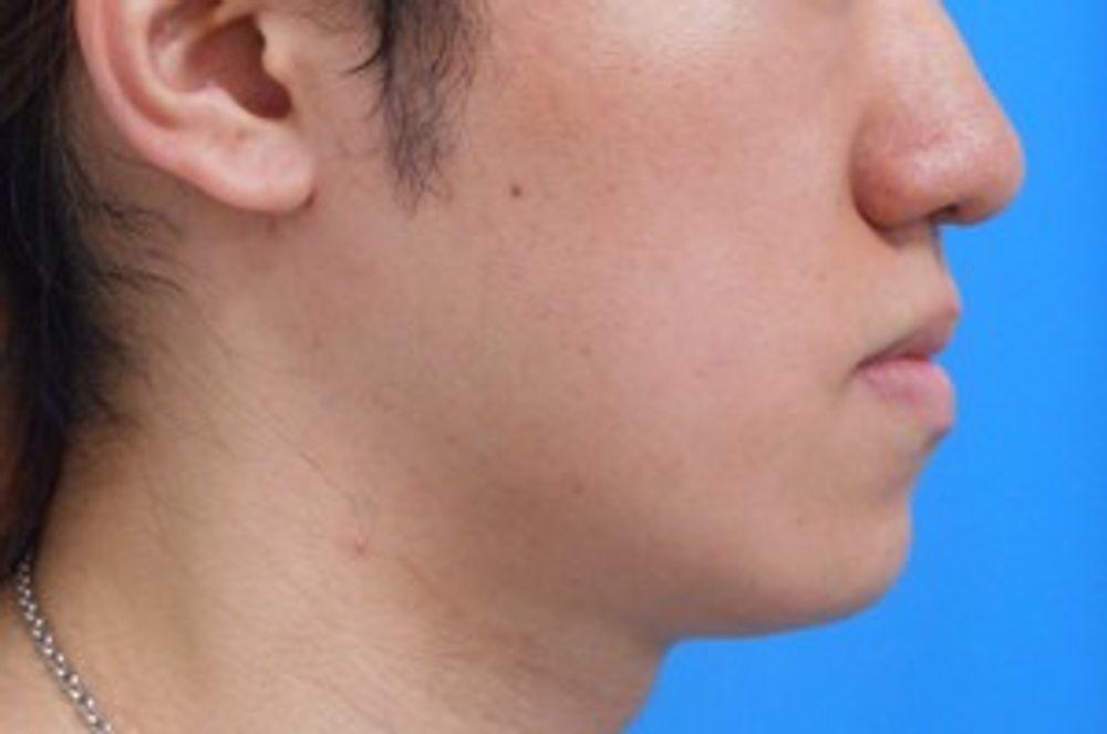 ガーデンクリニックの輪郭,口腔外科,下顎骨分節骨切り(受け口修正)の画像