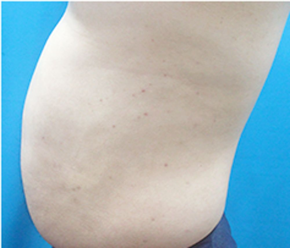 ガーデンクリニックの脂肪吸引,脂肪吸引(腹)の画像