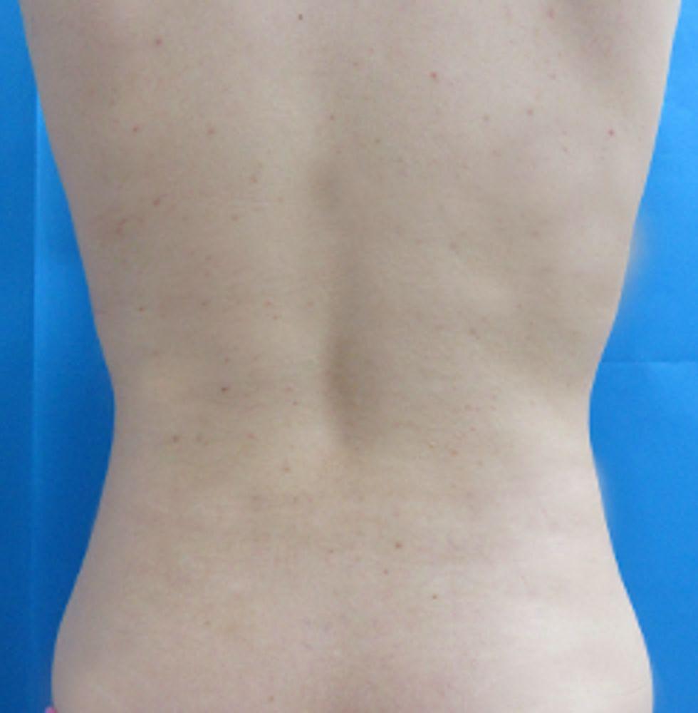ガーデンクリニックの脂肪吸引,脂肪吸引(腹),脂肪吸引(背)の画像