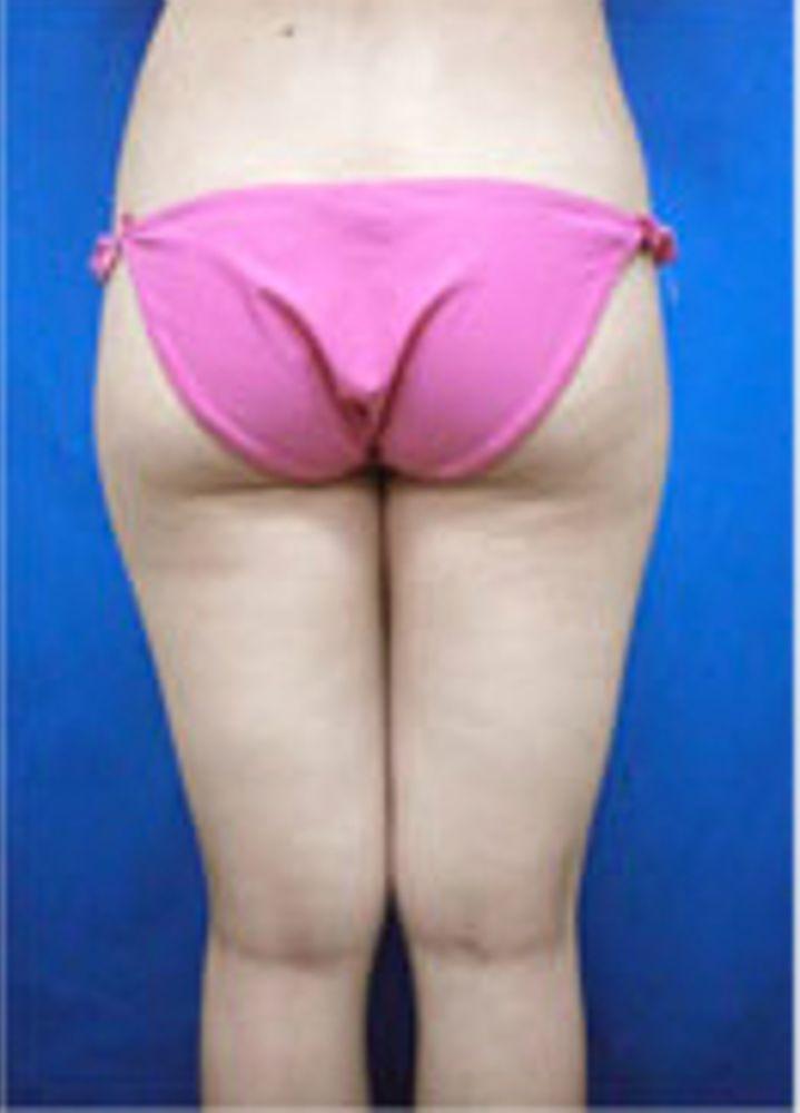 ガーデンクリニックの脂肪吸引,脂肪吸引(太もも),脂肪吸引(尻)の画像