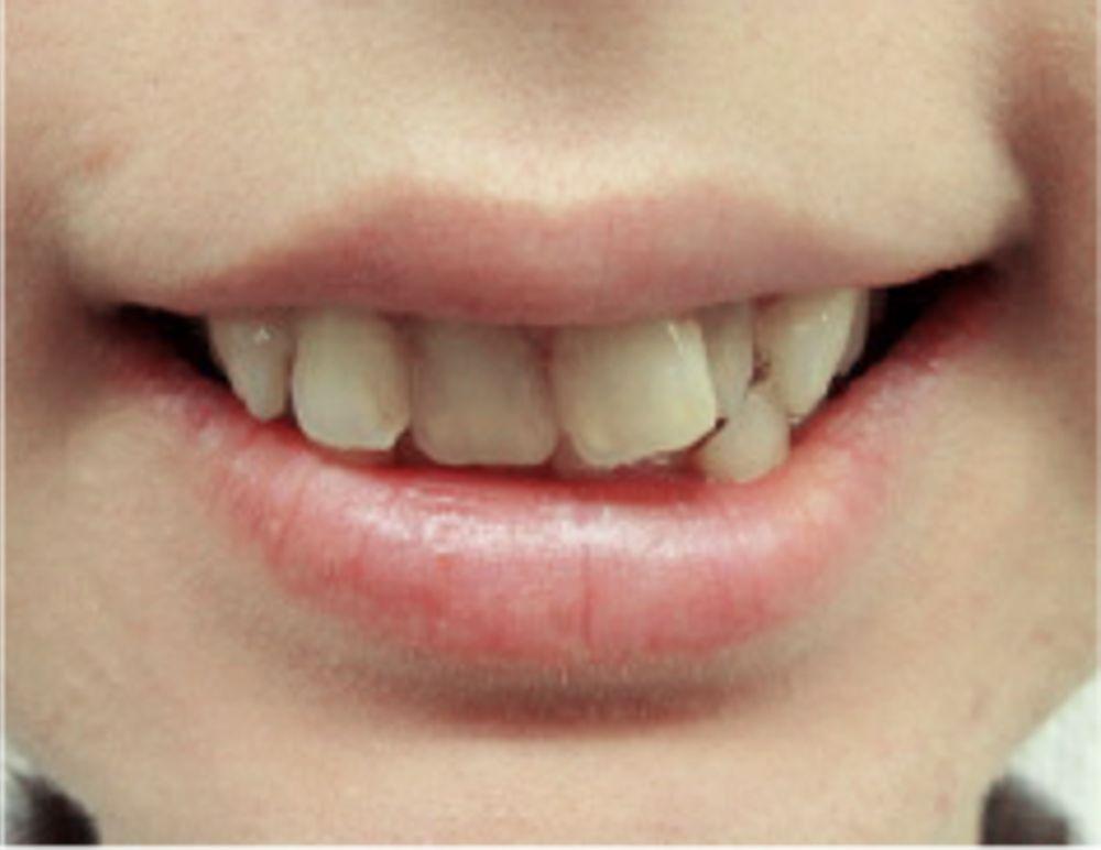 ザ・ホワイトデンタルクリニック のセラミック,オールセラミック,審美歯科の画像