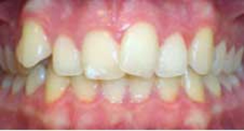 ザ・ホワイトデンタルクリニック の歯の矯正,マウスピース矯正(インビザライン)の画像