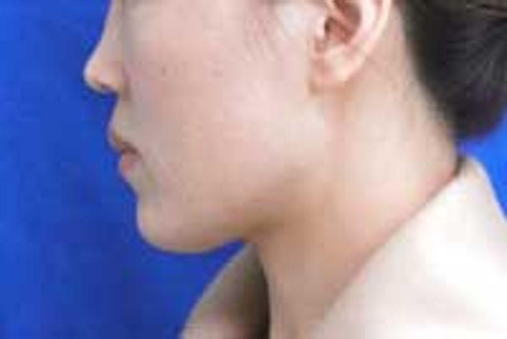 ザ・ホワイトデンタルクリニック の口腔外科,上顎骨分節骨切り(出っ歯修正),下顎骨分節骨切り(受け口修正)の画像