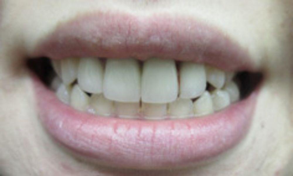 ザ・ホワイトデンタルクリニック のセラミック,オールセラミック,ガミースマイル,クラウンレングスニング(歯冠長延長術)の画像