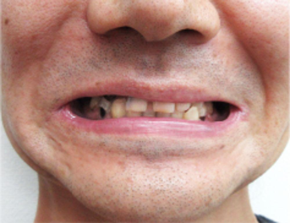 ザ・ホワイトデンタルクリニック の審美歯科の画像