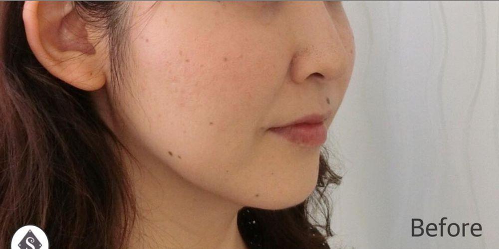 S Beauty Clinicの脂肪溶解注射の画像