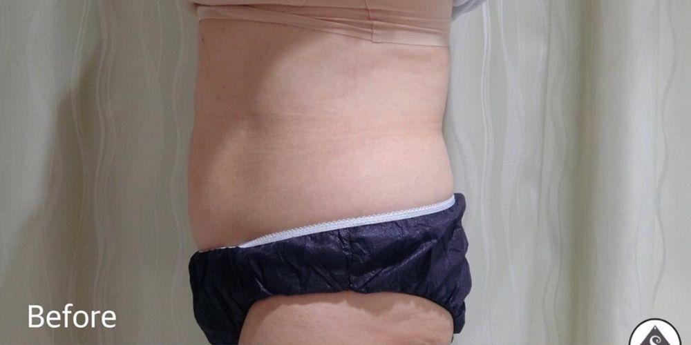 S Beauty Clinicの超音波脂肪溶解,痩身の画像