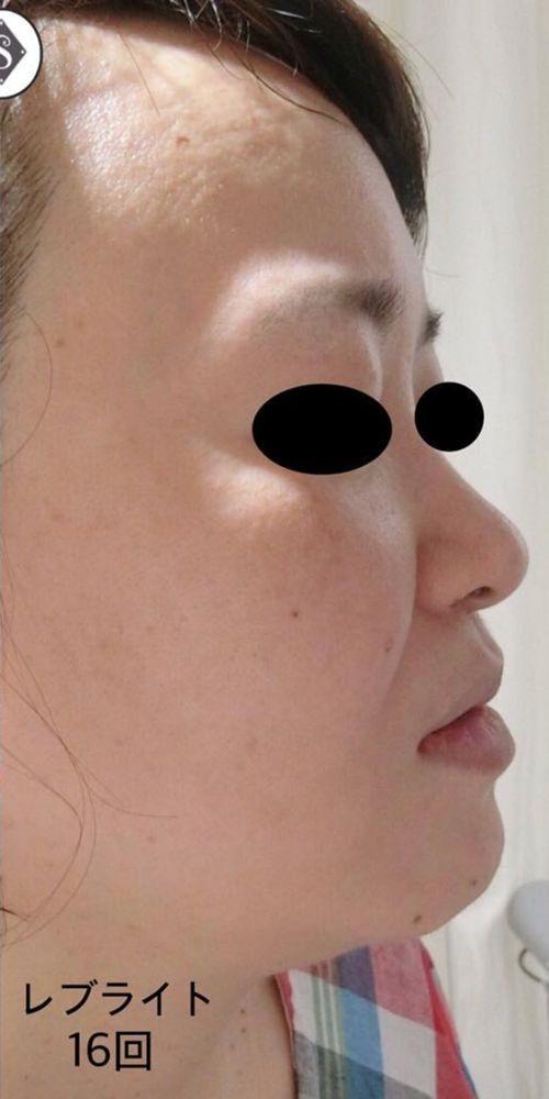 S Beauty Clinicのニキビ,毛穴,ほくろ,タトゥー除去・傷跡修正,YAGレーザー,レーザートーニング,美白・美肌,しみの画像