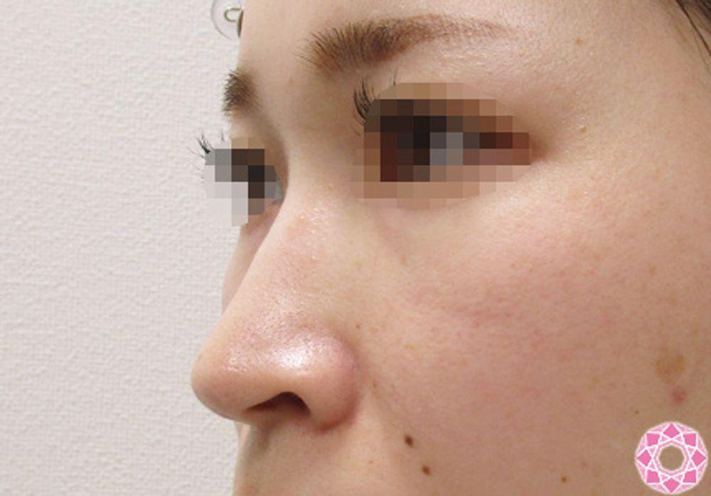 東京形成美容外科の隆鼻(鼻を高く),隆鼻ヒアルロン酸注入の画像