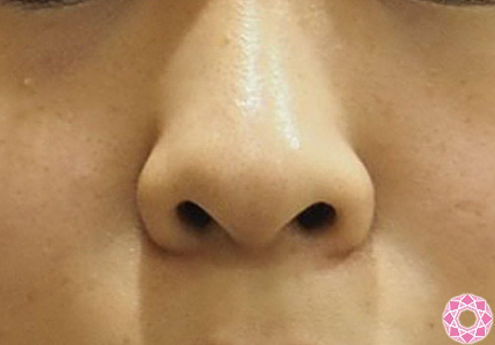 東京形成美容外科の鼻の付け根,鼻翼縮小手術の画像