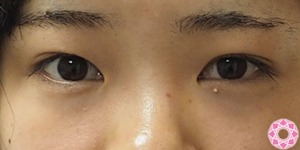 東京形成美容外科の埋没法,二重まぶたの画像