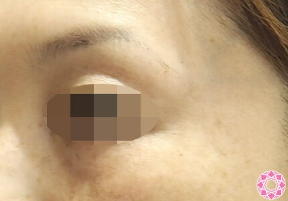 東京形成美容外科のレーザートーニング,美白・美肌の画像