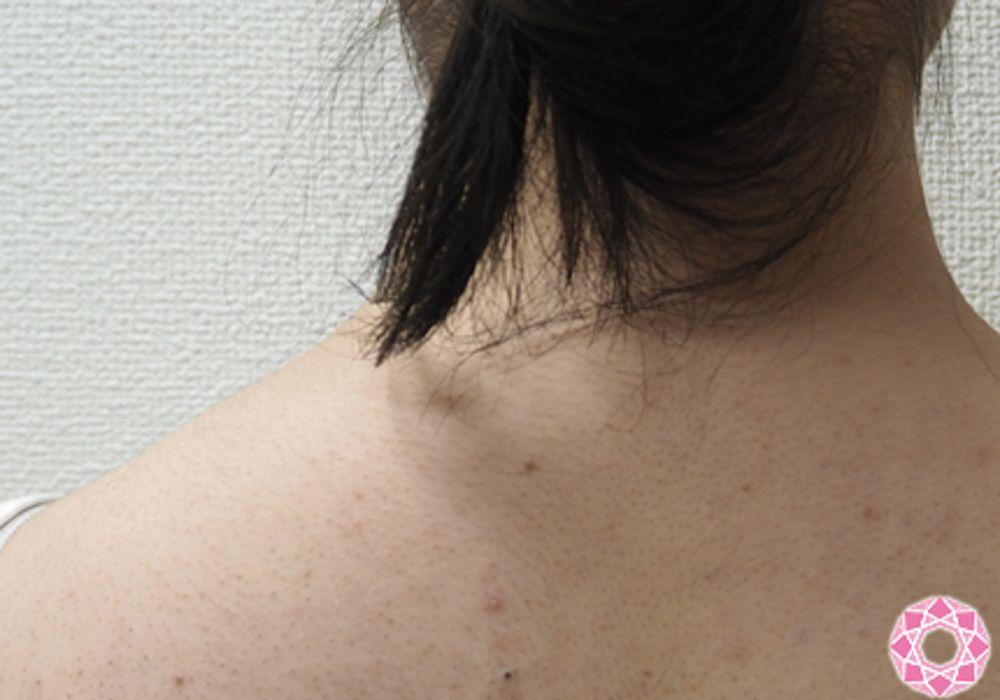 東京形成美容外科のボトックス,肩ボトックスの画像