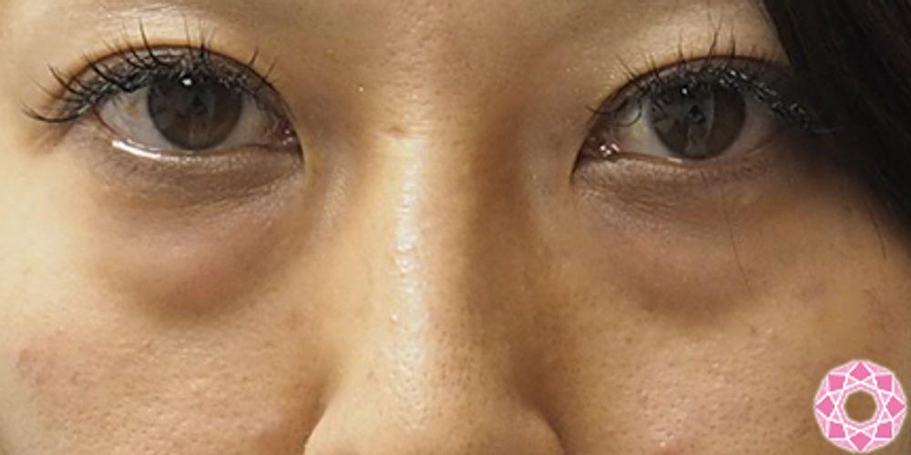 東京形成美容外科のたるみ・クマ取り,下眼瞼切開(下瞼たるみ取り)の画像