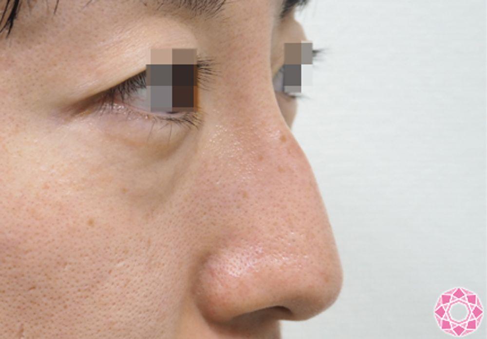 東京形成美容外科の鼻の骨,ハンプ鼻(わし鼻)修正の画像