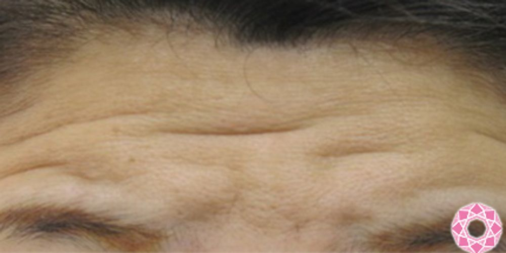 東京形成美容外科のボトックス,額しわボトックス,眉間しわボトックス,目尻しわボトックスの画像