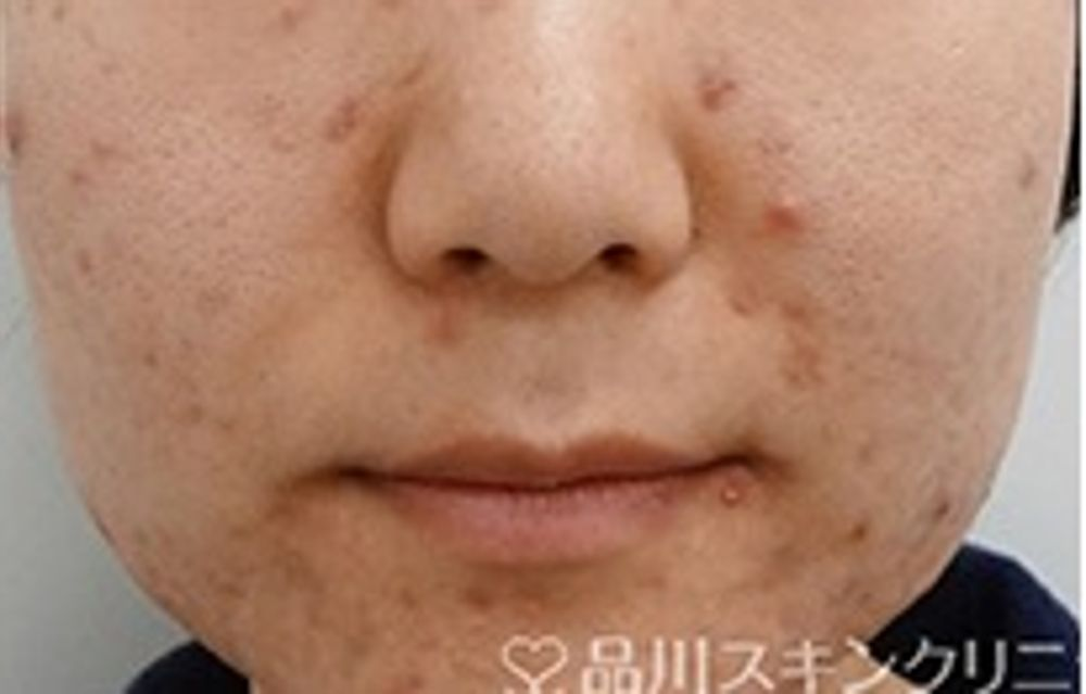 品川スキンクリニックのニキビ,毛穴,美容皮膚,美白・美肌,フラクショナルCO2レーザーの画像