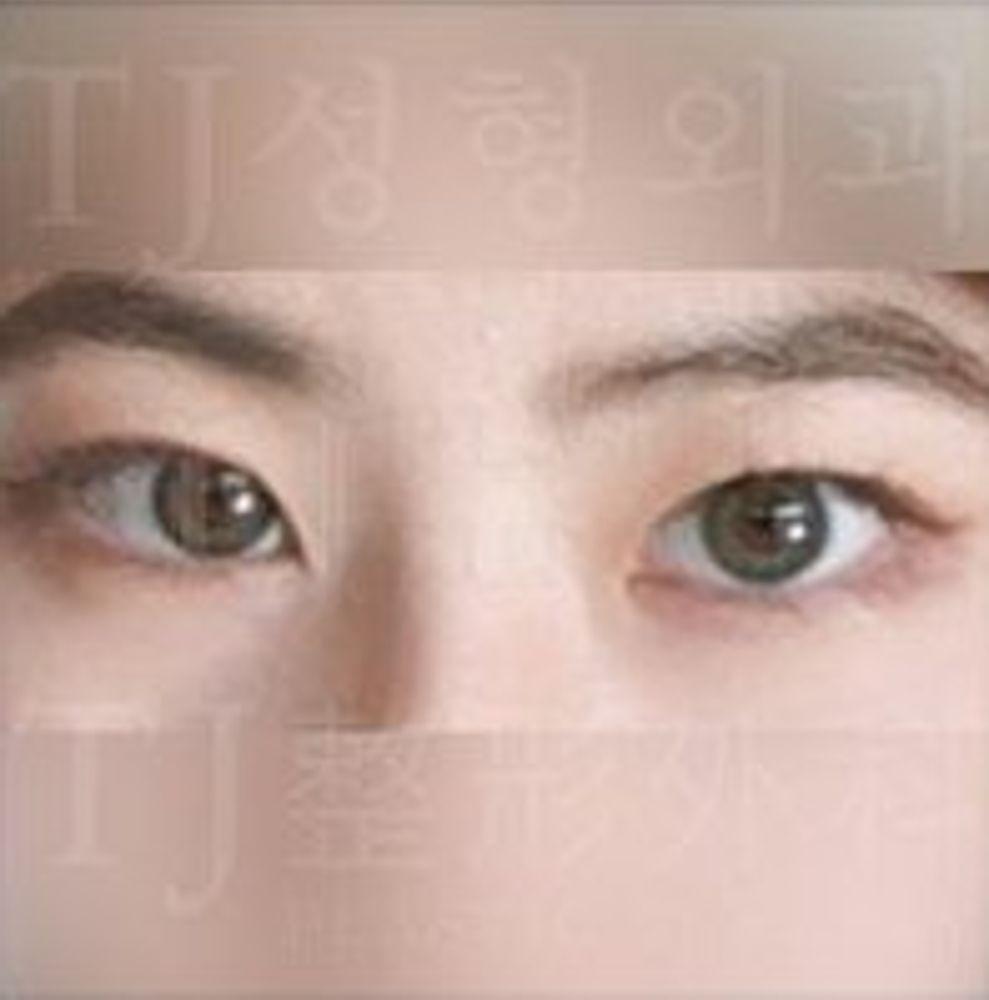 TJ美容外科の埋没法,二重まぶた,目頭切開,目を大きくの画像