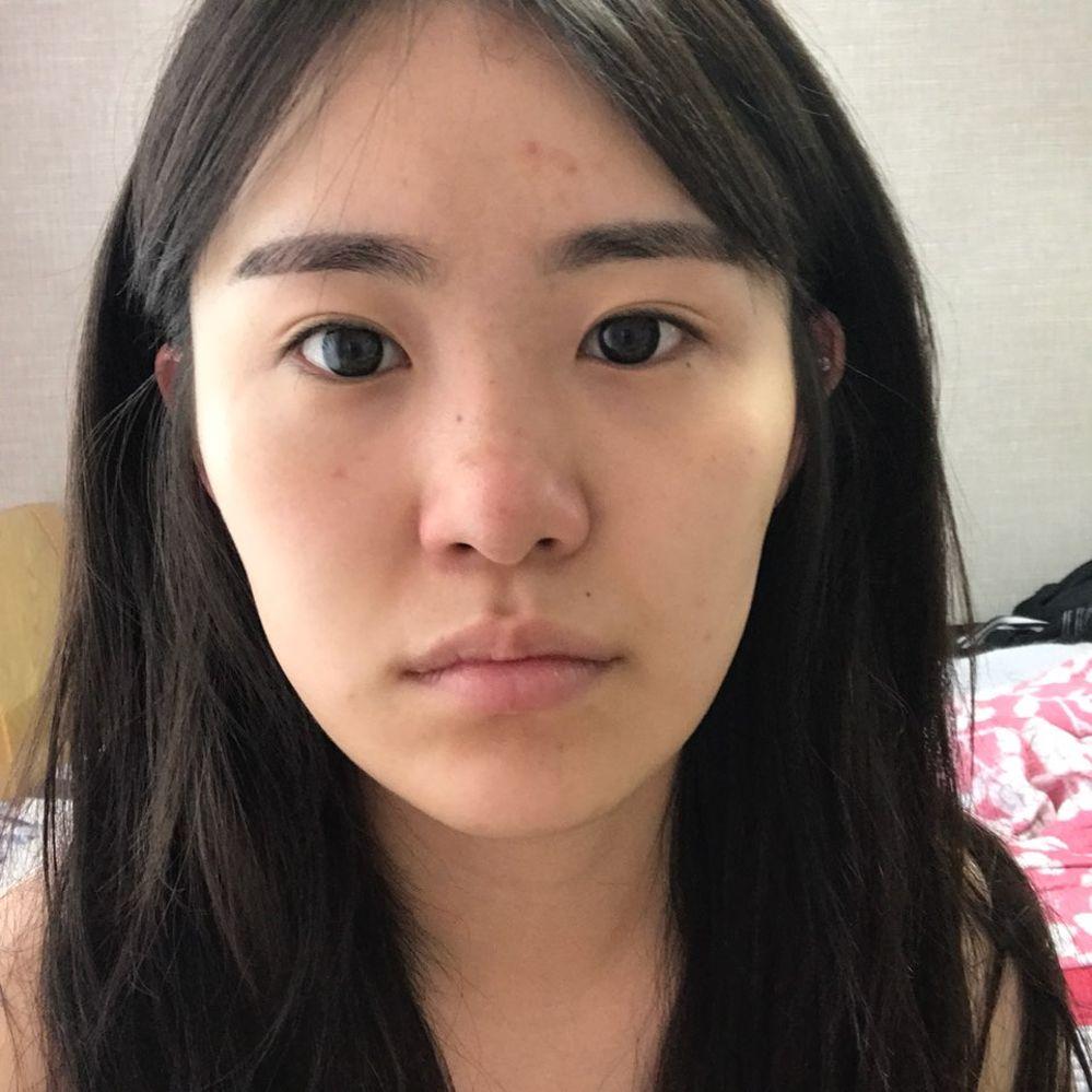 VG整形外科の鼻,隆鼻(鼻を高く),目を大きく,たれ目・グラマラスライン,目尻切開の画像