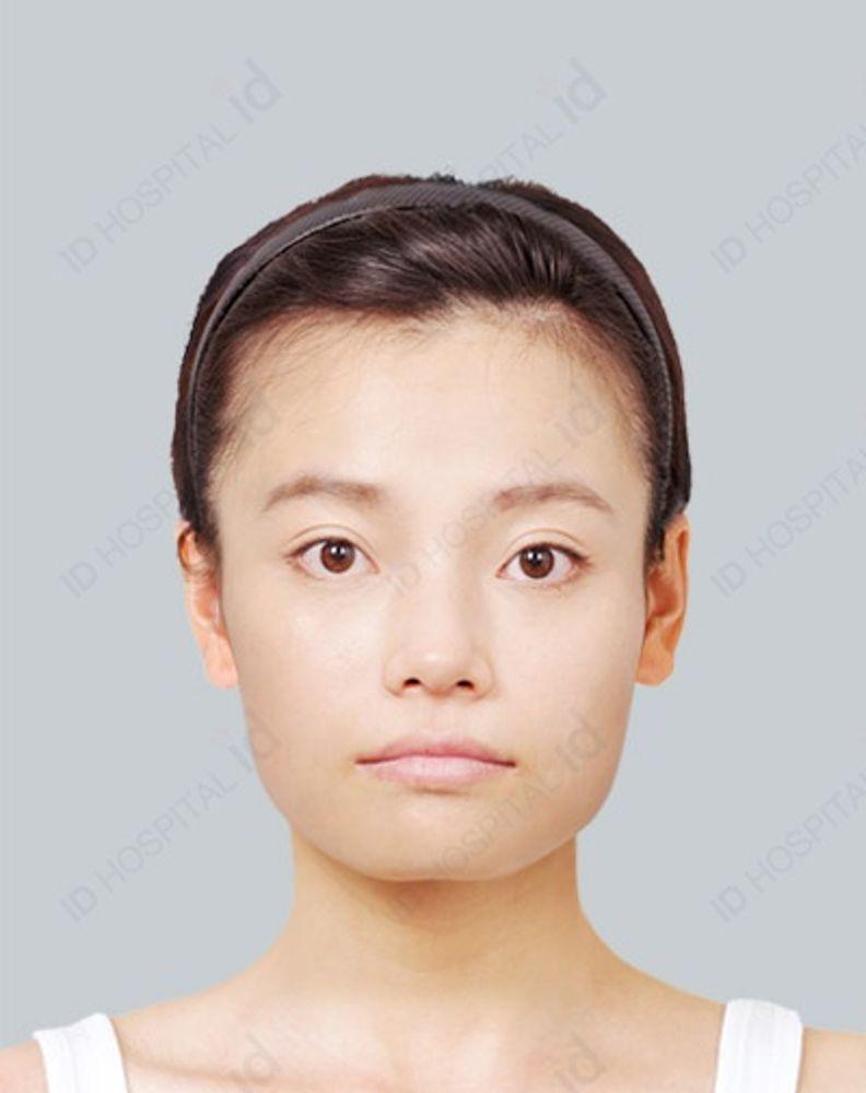 id美容外科 韓国院のアゴ,エラ,アゴ削り(Vライン),エラ削り(Vライン),オトガイ(アゴ)形成術,頬骨縮小(頬骨骨切り),ホホの画像