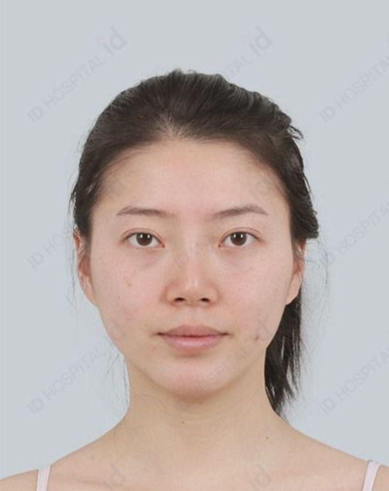 id美容外科 韓国院のエラ,エラ削り(Vライン),頬骨縮小(頬骨骨切り),ホホ,口腔外科,目尻切開,目を大きく,たれ目・グラマラスライン,脂肪注入の画像