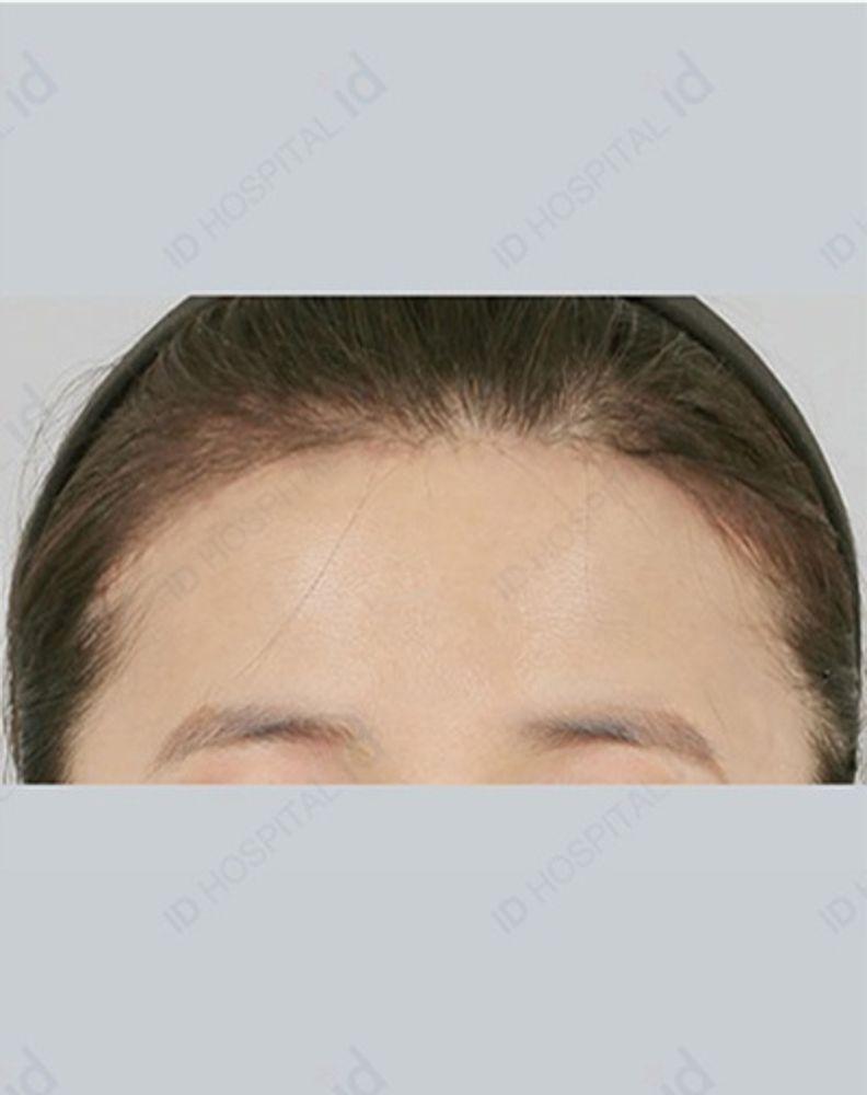 id美容外科 韓国院のヘアーラインの画像