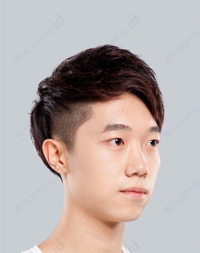 顎 整形 韓国