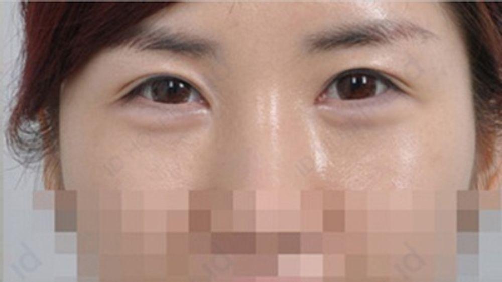 id美容外科 韓国院のアゴ,額,顎ヒアルロン酸,額形成ヒアルロン酸,頬形成術ヒアルロン酸,こめかみ,こめかみヒアルロン酸,ホホの画像