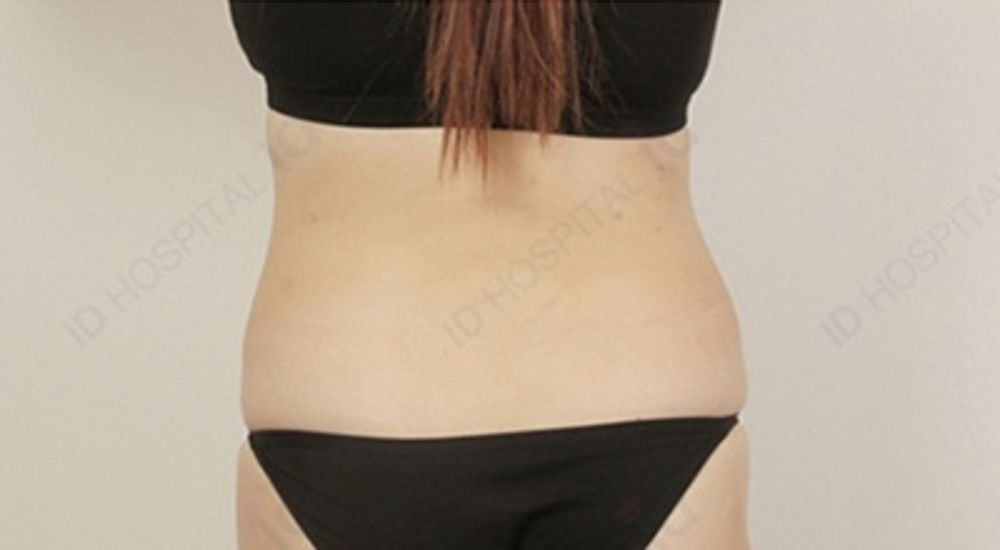 id美容外科 韓国院の脂肪吸引,脂肪吸引(太もも),脂肪吸引(腹),脂肪吸引(腕),脂肪吸引(ふくらはぎ)の画像