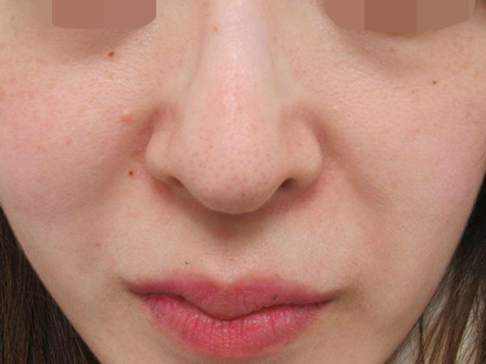 TAクリニックの鼻の付け根,人中を短くの画像