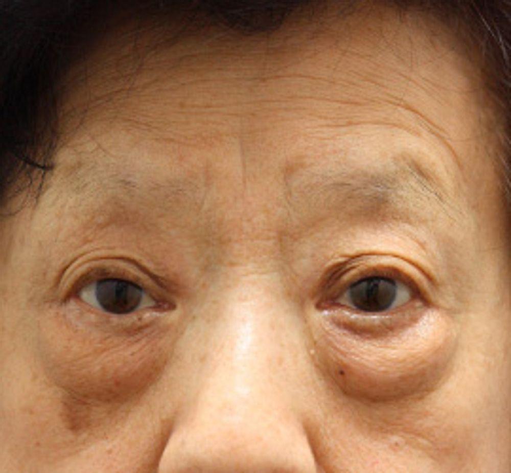 オザキクリニックLUXE新宿のたるみ・クマ取り,下眼瞼切開(下瞼たるみ取り),アンチエイジング,ACR(PRP)療法の画像