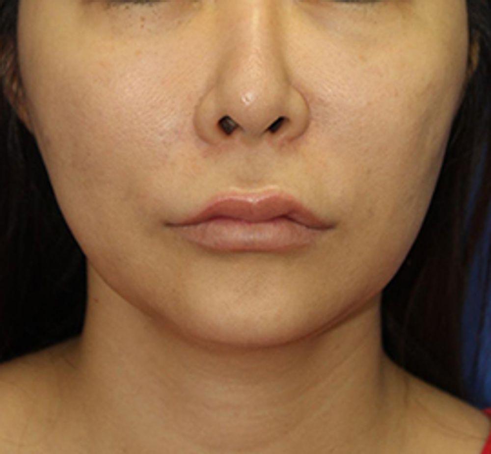 オザキクリニックLUXE新宿の人中を短く,人中短縮術(リップリフト),鼻中隔,鼻中隔軟骨の画像