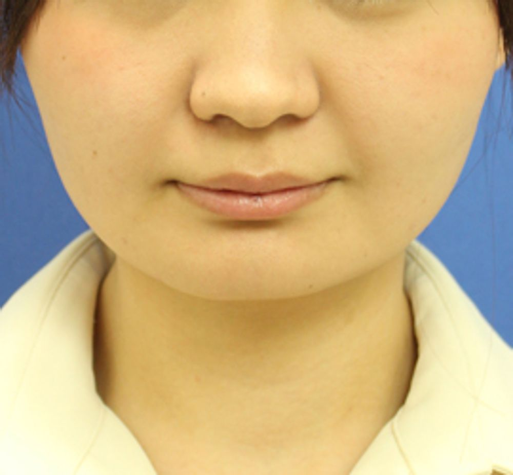 オザキクリニックLUXE新宿のボトックス,顔ボトックス,エラ,エラボトックスの画像
