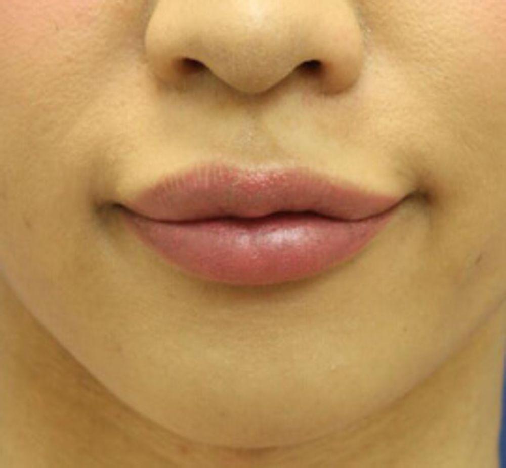 オザキクリニックLUXE新宿の口角ボトックス,唇を大きく,口唇拡大術ヒアルロン酸,口角を上げるの画像