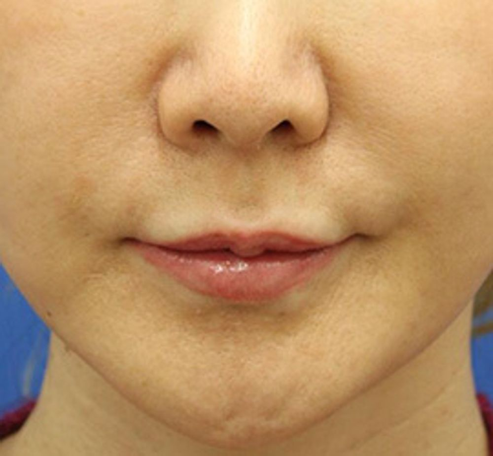 オザキクリニックLUXE新宿の人中を短く,人中短縮術(リップリフト),口角を上げるの画像