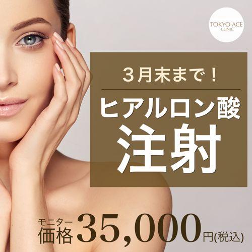 TOKYO ACE CLINIC 渋谷院のキャンペーン画像