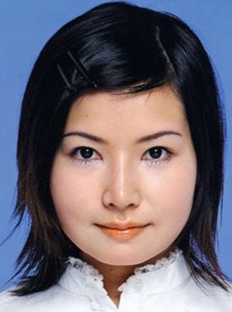 コムロ美容外科クリニックのアゴ,プロテーゼの画像