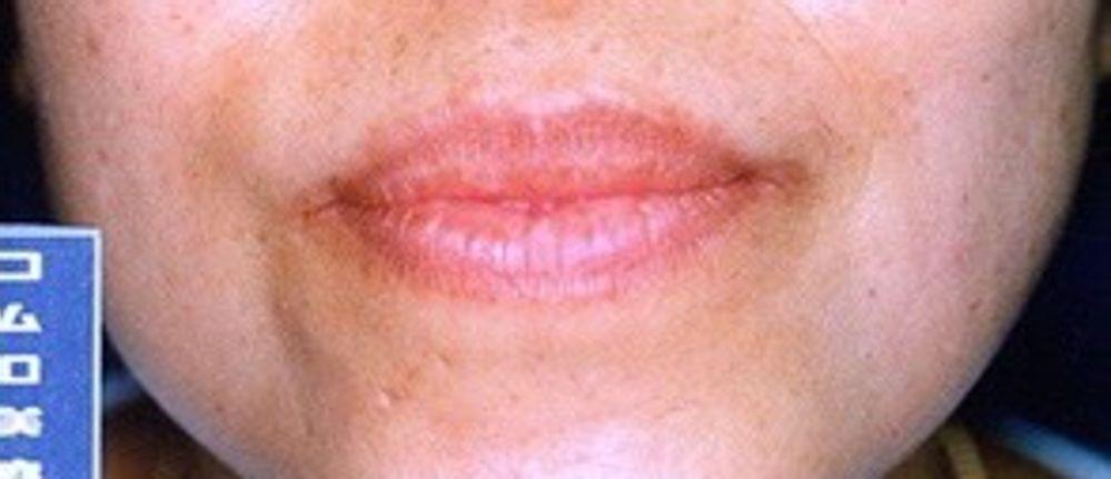 コムロ美容外科クリニックの口唇縮小術,唇を小さくの画像