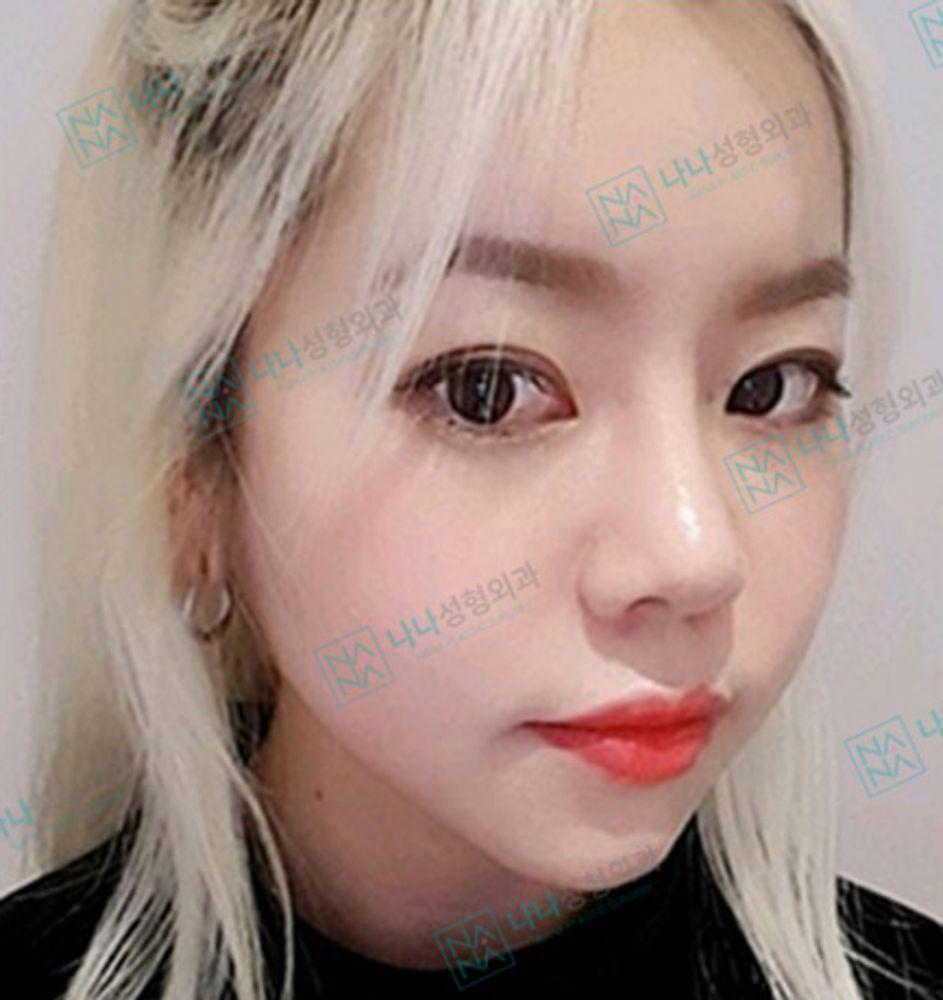 NANA整形外科の鼻,全切開法,二重まぶたの画像