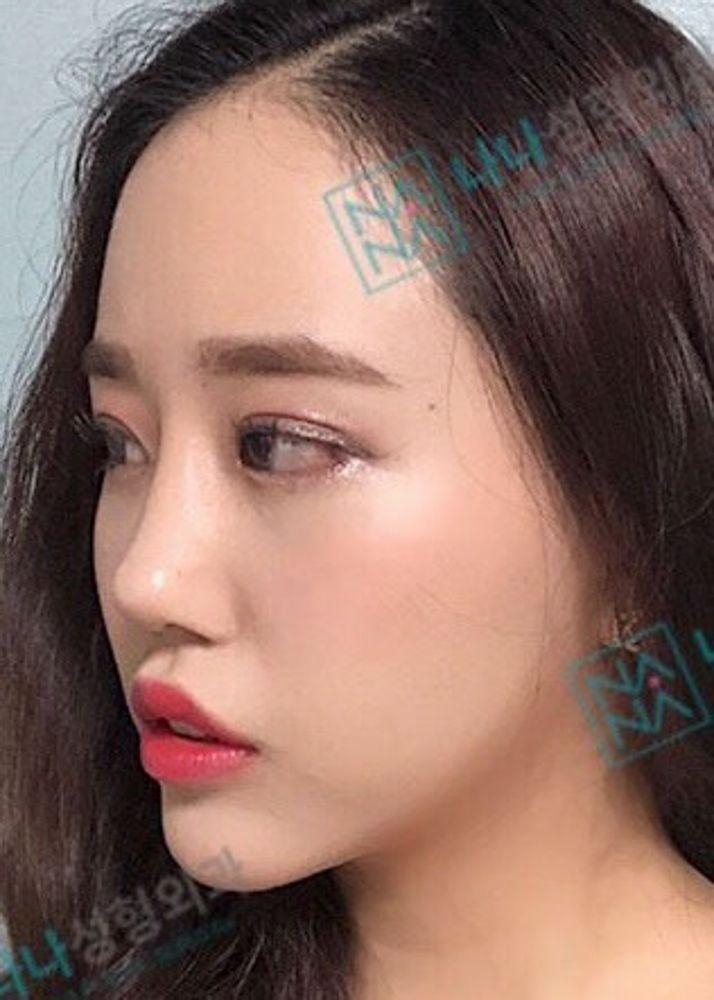 NANA整形外科の鼻,目尻切開,目を大きくの画像