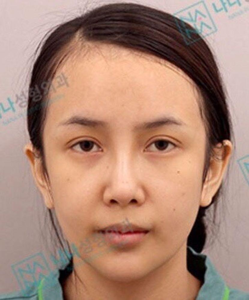 NANA整形外科のスレッド(糸)リフトの画像