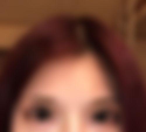 メイリーの施術レポート,目,眼瞼下垂,たるみ・クマ取り,上眼瞼切開(上瞼たるみ取り),眼瞼下垂(挙筋短縮法)の画像