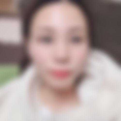 鼻 プロテーゼ 口コミ