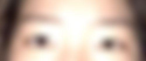 メイリーの施術レポート,目,目頭切開,二重まぶた,部分切開法,目を大きく,井田雄一郎の画像