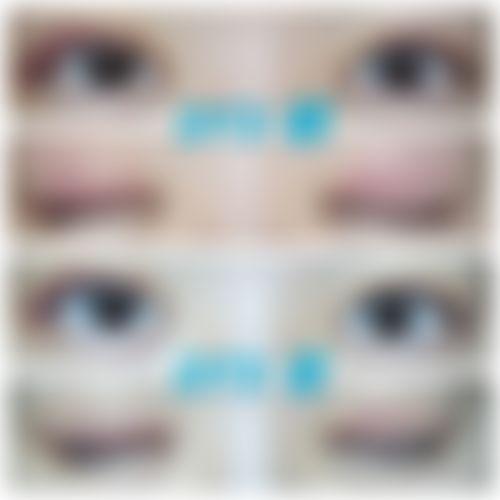 メイリーの施術レポート,目,全切開法,眼瞼下垂,二重まぶたの画像