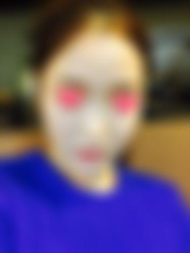 メイリーの施術レポート,鼻,隆鼻(鼻を高く),隆鼻肋軟骨の画像